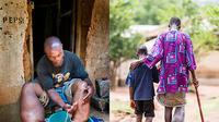 Kaki gajah, merupakan penyakit yang disebabkan oleh cacing filaria dan ditularkan melalui gigitan nyamuk (Foto: who.int)