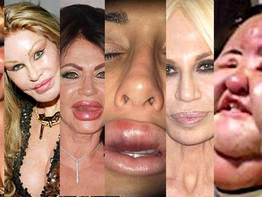 Operasi kecantikan malah membuat enam wanita ini semakin mengerikan (Istimewa)