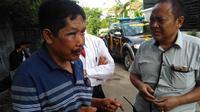 ondisi muka korban Afrodi (51) setelah dihajar perampok. (Foto: Thoriq/KRjogja.com)