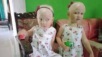 Dusun Gadungan di Desa Nambangan, Kacamatan Selogiri, Wonogiri, mendadak viral dan dibicarakan banyak orang. Pasalnya di dusun tersebut ada anak kembar yang terlahir bule, padahal kedua orangtua mereka asli Selogiri. (Solopos/ Aris Munandar)