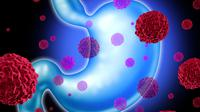 gejala kanker lambung (Sumber: iStockphoto)