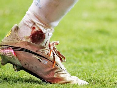 Megabintang Lionel Messi tampil heroik saat membawa Argentina menaklukkan Kolombia pada laga semifinal Copa America 2021. Meski dalam kondisi kaki berdarah ia tetap berjuang dan bermain penuh. (Foto:AFP/Silvio Avila)
