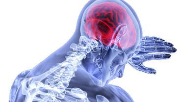 Ilustrasi pendarahan otak