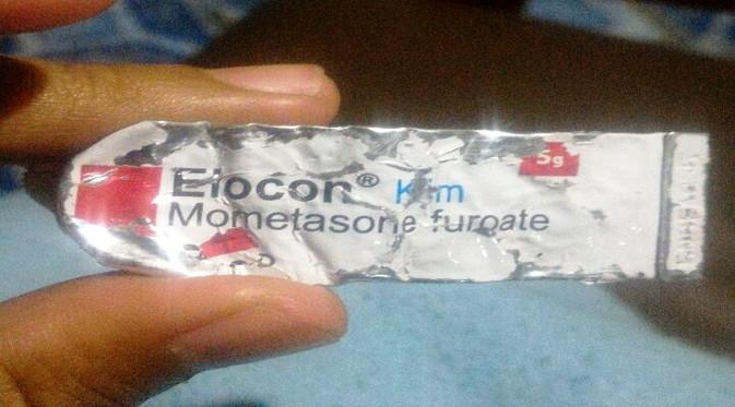 Obat salep elocon mometasone furuoate bisa jadi rekomendasi untuk mengobati kutu babi. (Foto: Wahana Visi Indonesia)
