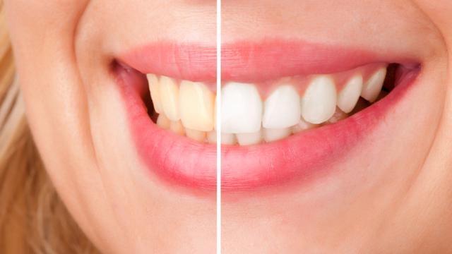 Gigi Putih Dari Bleaching Perlu Disesuaikan Warna Kulit Health