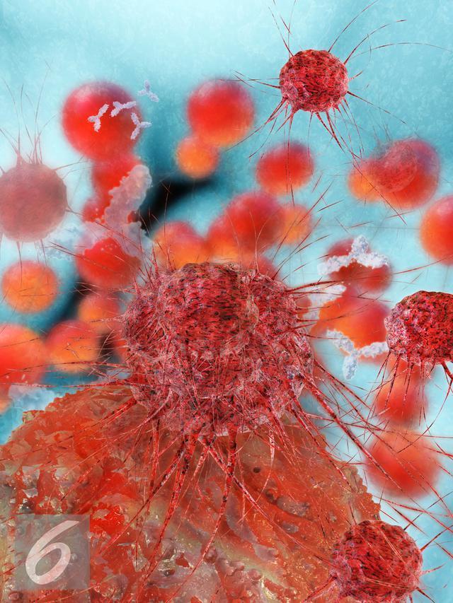 AI Minimalisir Kesalahan Diagnosis Kanker Payudara hingga ...