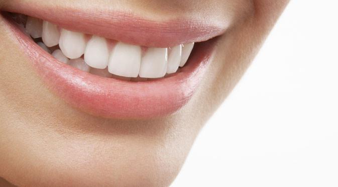Ilustrasi gigi putih (foto: shutterstock.com).