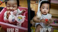Potret bayi Jeongin sebelum dan sesusah disiksa orang tua asuh. Dok: SBS UnansweredQ