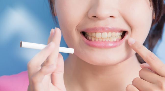 19 Cara Memutihkan Gigi Secara Alami 5ddbcc3c4f