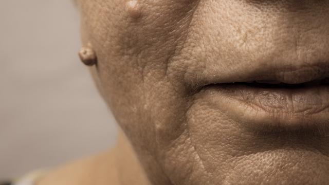 Cra Menghilangkan Jerawat Dan Paru Hitam Pda Hidung