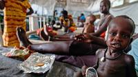 Seorang anak tampak kurus akibat gizi buruk yang ia alami di sebuah klinik di Lankien, Sudan Selatan, (8/4).Tingkat kelaparan di Sudan selatan memang sangat mengkhawatirkan. (Albert Gonzalez Farran / cds / AFP)
