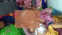 Ahmad Hasan bayi 9 bulan penderita Hidrosefalus masih dirawat intensif di Rumah Sakit Aloe Saboe Kota Gorontalo usai menjalani operasi. (Liputan6.com/ Arfandi Ibrahim)