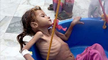 Perang Panjang, 5 Juta Lebih Anak Yaman Terancam Kelaparan Akut