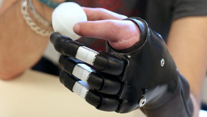 Lengan Bionik Cetak 3D Buatan Pelajar. (Doc: AFP Photo)