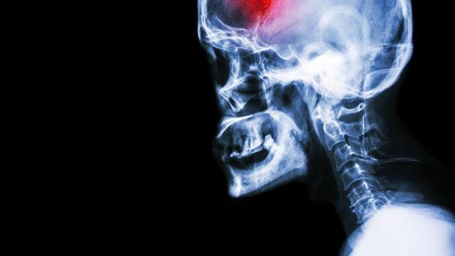 Ilustrasi stroke (iStockphoto)