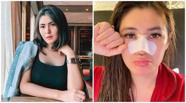 8 Selebriti Indonesia yang Lakukan Opersi Hidung, Terbaru Angela Lee