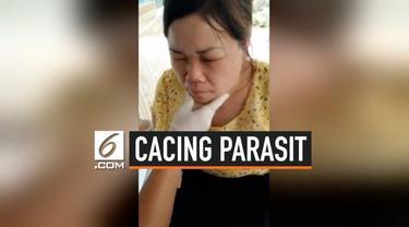 Wajah seorang wanita Vietnam dipenuhi puluhan cacing parasit. Dokter berhasil mengeluarkan cacing parasit yang diketahui telah berkembang biak.