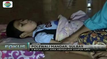 Bocah-bocah bertetangga asal Polewali Mandar, Sulawesi Barat ini mengalami lumpuh layu. Apa penyebabnya?