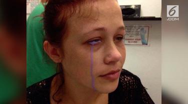 Catt Gallinger, wanita asal Ottawa Kanada ini menato matanya. Ia mengalami pembengkakan dimata. Lantaran kurang benar penorehannya, wanita ini mengeluarkan air mata berwarna ungu.