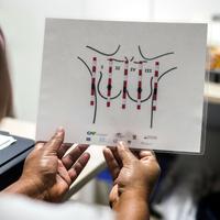 Pasien melihat sebuah diagram pemeriksaan payudara yang akan dilakukan petugas medis tunanetra di sebuah rumah sakit di Cali, Kolombia (14/11). (AFP/Luis Robayo)