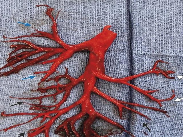 Ada Gumpalan Darah di Saluran Pernapasan, Pria Ini Alami Gagal Jantung -  Health Liputan6.com