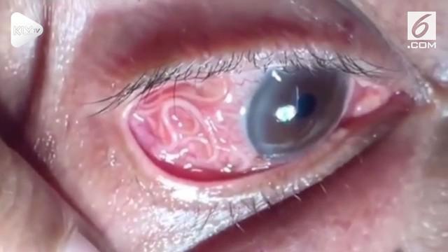 Seorang pria di India, mengaku matanya gatal dan perih. Setelah diperiksa, ternyata matanya dihinggapi cacing parasit sepanjang 15 cm.