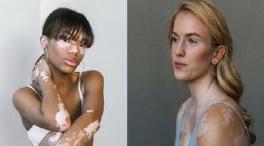 model vitiligo