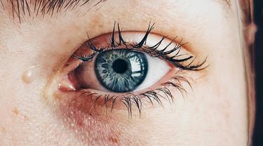 3 Penyebab Pori-Pori Wajah Tampak Besar, Simak Cara Mengatasinya