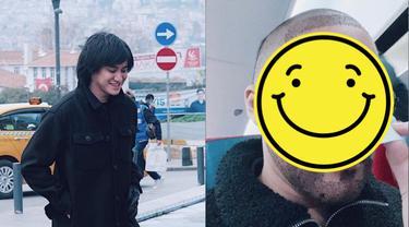 Potret Kevin Aprilio Jalani Transplantasi Rambut
