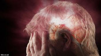 Diidap Oddie Agam Sebelum Meninggal, Stroke Bisa Sebabkan Gagal Ginjal