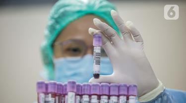 Petugas medis menunjukkan Tes serologi COVID-19 di RS Siloam Kebon Jeruk, Jakarta, Selasa (11/8/2020). Tes serologi antibodi SARS-CoV-2 berbasis lab adalah tes untuk mendeteksi antibodi baik Imunoglobulin M (IgM) dan Imunoglobulin G (IgG) terhadap SARS-CoV-2 dalam darah. (Liputan6.com/Faizal Fanani)