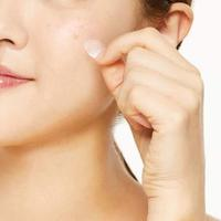 acne patch/oo35mm.com