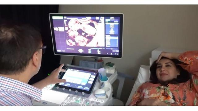 Bayi Kembarnya Meninggal, Ini 7 Momen Kenangan Kehamilan Irish Bella