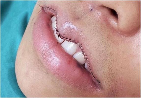 Lip Reduction Prosedur Kecantikan Untuk Yang Ingin Kecilkan Bibir Beauty Fimela Com