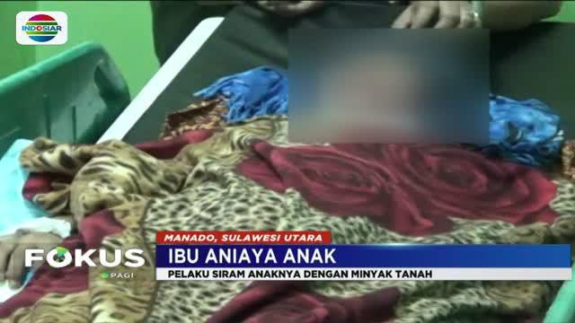 Korban mengalami luka bakar di sekujur tubuh serta wajahnya yang diduga akibat disiram minyak tanah oleh ibunya.