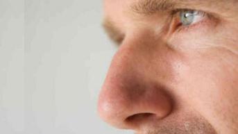 5 Cara Mudah Hilangkan Komedo Bagi Kaum Pria