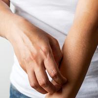 ilustrasi resep ramuan alami yang bisa menyembuhkan gatal di kulit/pixabay