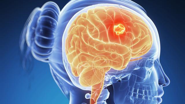 Penyebab Sakit Kepala Terus-menerus yang Perlu Diwaspadai.