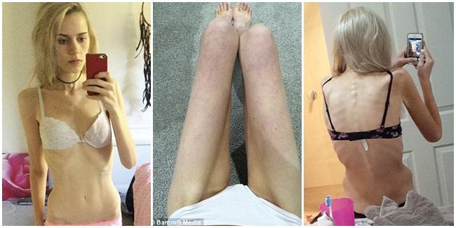 Tubuh Elle yang seperti mayat hidup akibat diet ketat. | Foto: copyright dailymail.co.uk