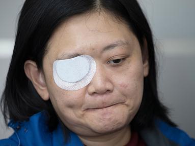 Jurnalis  Indonesia yang tertembak di Hong Kong, Veby Mega Indah saat wawancara dengan The Associated Press di distrik Wan Chai pada 4 Desember 2019. Veby (39), mendesak kepolisian setempat membuka identitas anggota polisi yang menembaknya agar ia bisa menggugat secara pribadi. (AP/Vincent Thian)