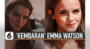 Orang sekitar sejak kecil menyebutnya mirip Emma namun ia tak merasa.