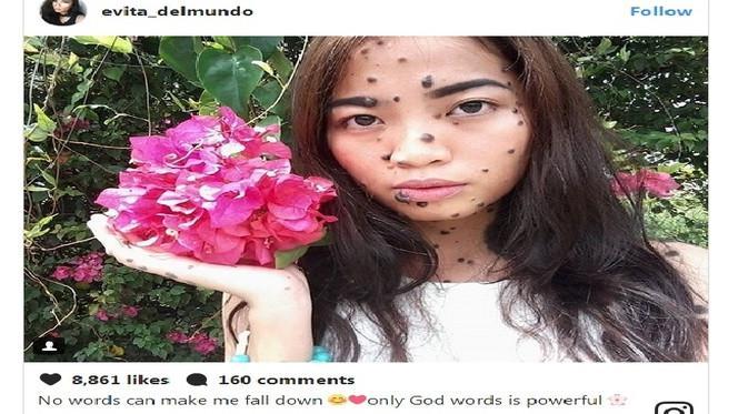 Evita punya tahi lalat besar di wajah dan tubuhnya. (Foto: printscreen Instagram Evita)