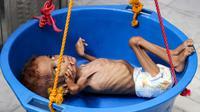 Seorang bocah yang menderita gizi buruk ditimbang di rumah sakit di Distrik Abs, Provinsi Haji, Yaman, Rabu (19/9). Konflik berkepanjangan antara pemerintah Yaman dengan pemberontak Houthi mengakibatkan 5,2 anak terancam kelaparan akut. (ESSA AHMED/AFP)
