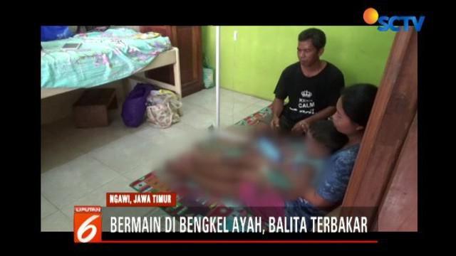 Insiden terjadi saat korban bermain didekat ayahnya yang sedang menambal ban motor di teras rumah.