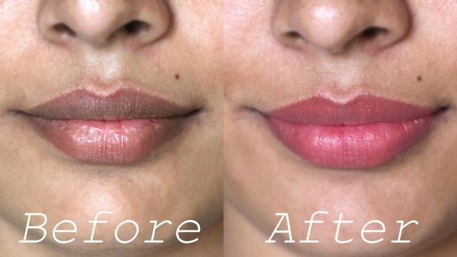 11 Cara Memerahkan Bibir Hitam Dengan Aman Dan Alami Ragam Bola Com