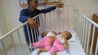 Bayi Kembar Siam bernama Adam dan Malik Ini Merupakan Anak ke-3 dan anak ke-4 pasangan Juliadi Silitonga (29) dan Nurida Sihombing (25) (Reza Efendi/Liputan6.com)