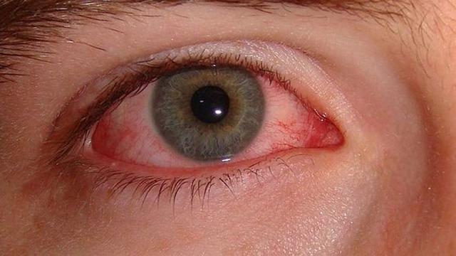 Image result for Penyakit Mata Disebabkan Oleh Bakteri