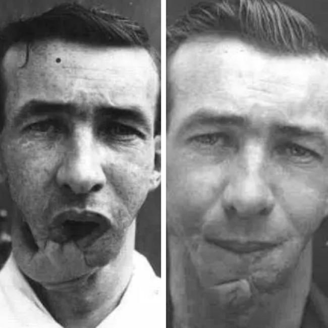 Foto sebelum dan sesudah Prajurit Arthur Mears melakukan operasi plastik karena wajahnya terluka akibat perang. Credits: Media Drum World via The Sun