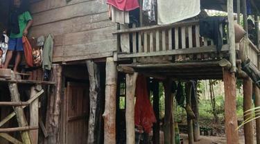 Gizi Buruk Hantui Penyandang Disabilitas di Kecamatan Termiskin di Musi Banyuasin