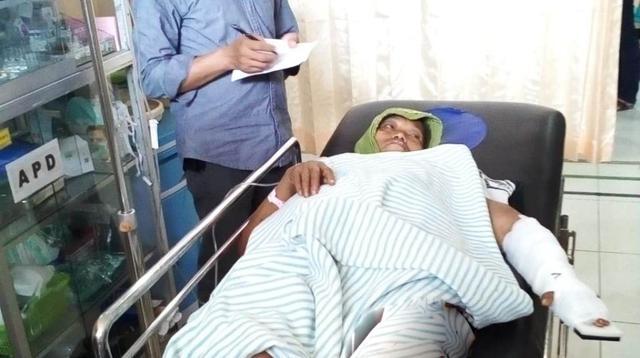 Darsiti (62) petani korban selamat serangan celeng di Kebumen, Jawa Tengah. (Liputan6.com/Polres Kebumen/Muhamad Ridlo)